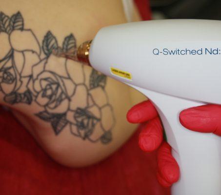 Удаление татуировок на аппарате М22