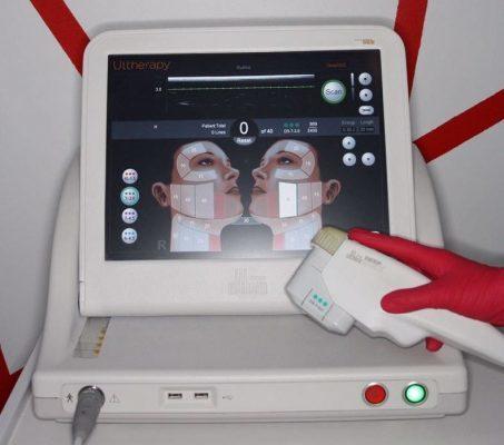 Ультразвуковой SMAS-лифтинг на аппарате ULTHERA
