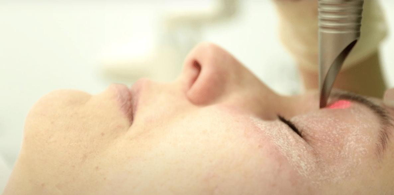 Лазерное омоложение кожи вокруг глаз